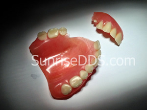Emergency broken denture to Orange County best dentist sunrise dental center