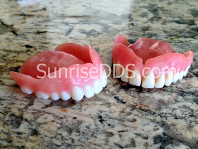 functional emergency denture and old broken denture comparison orange county dentist
