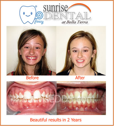 Sunrise Dental Huntington Beach Orthodontic result