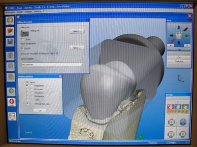 Cerec 3D Crown Modeling, Designing and Milling
